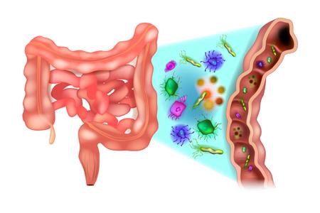 Disbiosis (también llamada disbacteriosis). Disbacteriosis del intestino - Bacterias del colon. Ilustración de vector