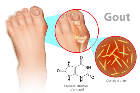 Illustration of foot with gout. It is a form of inflammatory arthritis due to the persistently elevated levels.