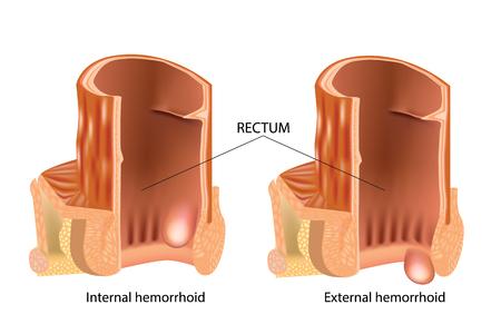 Ilustración médica que muestra hemorroides internas y externas. Tipos de hemorroides. Las hemorroides, también llamadas pilas, son estructuras vasculares en el canal anal. Ilustración de vector
