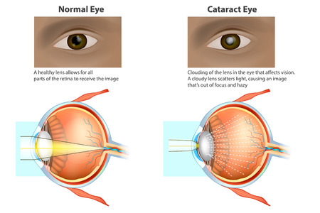 Cataract is a clouding of the lens. Cat and eye clouded lens