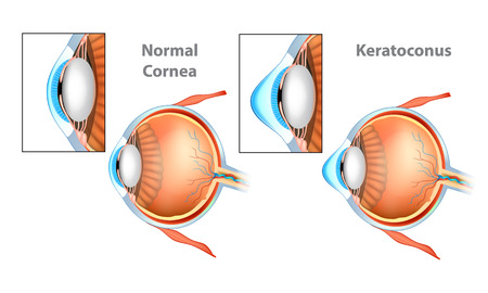 Normal Cornea and Keratoconus (KC) Cornea.