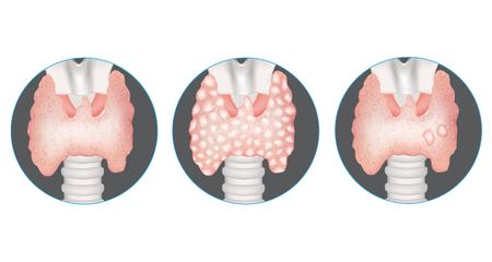 Thyroid gland diseases. Healthy thyroid, multinodular goiter and gland with nodules. Illustration