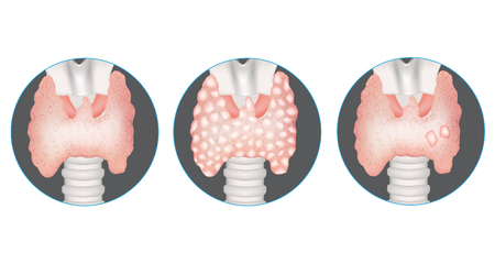 Thyroid gland diseases. Healthy thyroid, multinodular goiter and gland with nodules. Stock Illustratie