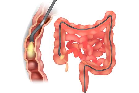 Illustration eines Koloskops während der Koloskopie. Magen-Darm-Endoskopie Vektorgrafik