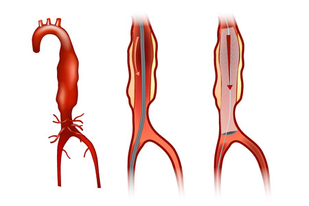 Endovascular aneurysm repair (or endovascular aortic repair) (EVAR) Illustration