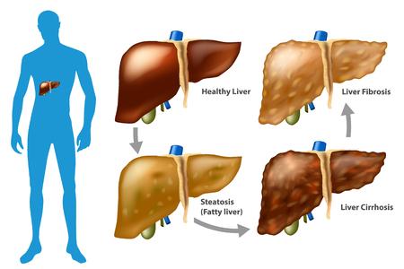 Fasi del danno epatico. La progressione della malattia del fegato. (steatosi, fibrosi, cirrosi)