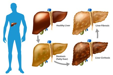 Stages of liver damage. The Progression of Liver Disease. (Steatosis, fibrosis, cirrhosis) Illustration