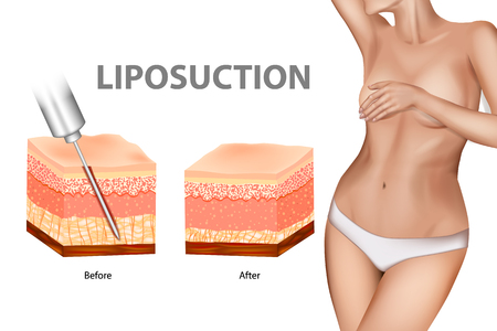 Liposuction or lipo. Liposuction. Plastic surgery infographic of Aesthetic Procedures