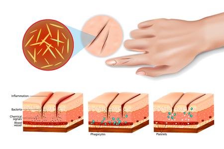 Uszkodzenie tkanki i stan zapalny. Zapalenie i naprawa uszkodzenia komórek. Układ odpornościowy