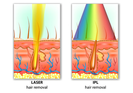 IPL (Intense Pulsed Light) and Laser Hair Removal. Hair Removal Differences