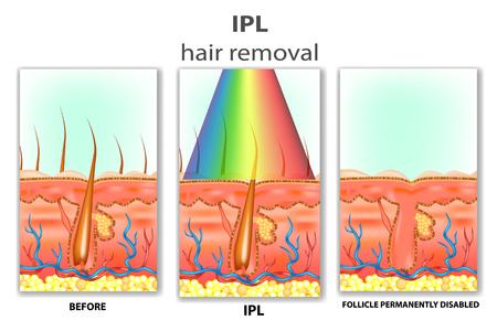 IPL (luz pulsada intensa). Cómo funciona el cabello IPL