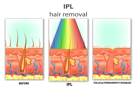 IPL (Intense Pulsed Light). How IPL Hair Works
