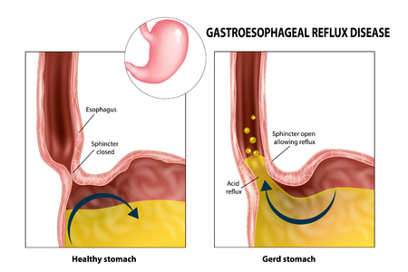 Gastroesophageal reflux disease (Gerd or Heartburn). Acid reflux Illustration