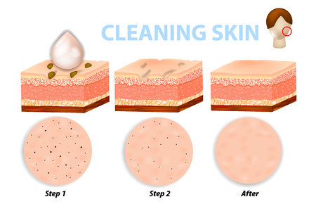 Cuidado de la piel facial, limpieza de poros. Pasos para la limpieza de la piel. Antes y después de usar exfoliantes, limpiadores y humectantes Ilustración de vector