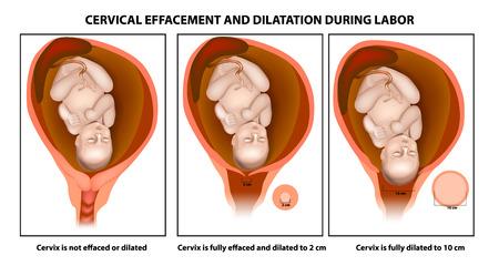 Zervikale Auslöschung und Dilatation während der Wehen Vektorgrafik