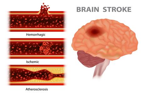 Schlaganfallarten: Arteriosklerose, ischämisch, hämorrhagisch Vektorgrafik