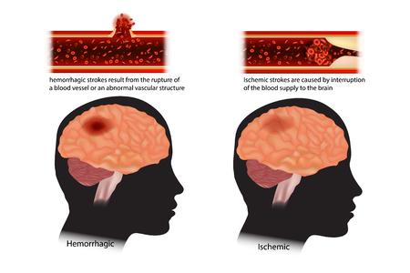 Schema dei due tipi di ictus. Ictus classificati: ischemici ed emorragici