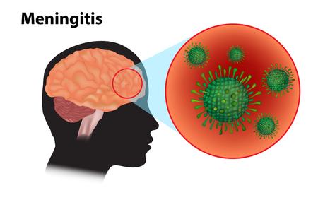 Meningitis - inflammation of the brain. Viral meningitis and encephalitis Illustration