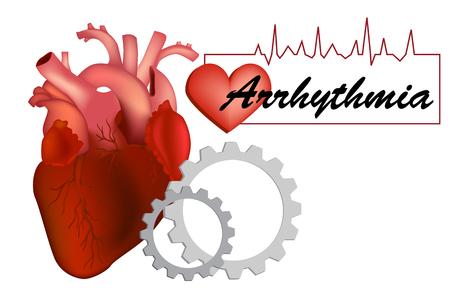 Heart arrhythmia (also known as arrhythmia, dysrhythmia, or irregular heartbeat).