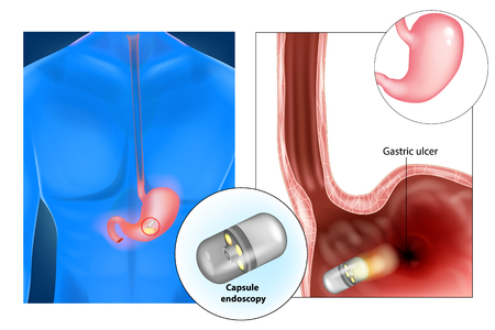 Capsule endoscopy (aka pill cam) - medical diagnosis.