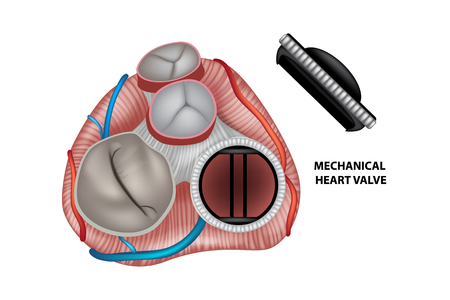 Circular mechanical (artificial) valve inside heart.