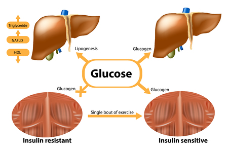 Glycogen in liver and muscle. Insulin sensitive and Insulin resistant.