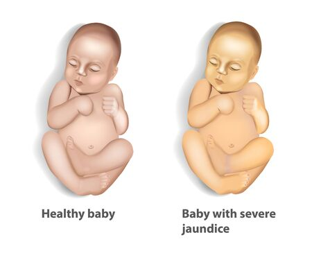 Extent of Jaundice (icterus) with Baby
