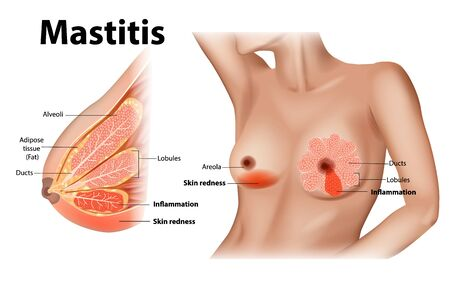 Mastitis is inflammation of the breast