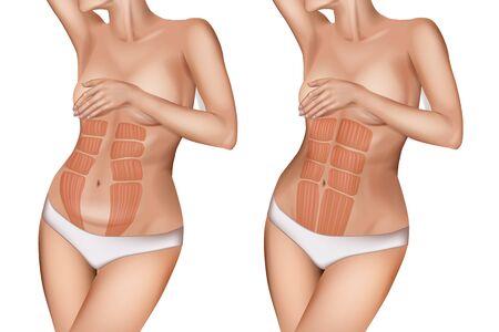 Diastasis recti or rectus abdominis diastasis