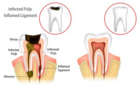 Root Canal Treatment. Infected Pulp and Inflamed Pulp 向量圖像