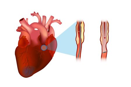 A coronary stent is a tube-shaped device placed in the coronary arteries.