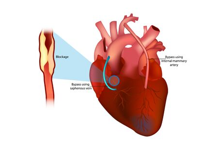 Coronary artery bypass surgery (Bypass using internal mammary artery and Bypass using saphenous vein)
