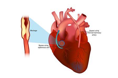 Pontage aortocoronarien (pontage utilisant l'artère mammaire interne et pontage utilisant la veine saphène)