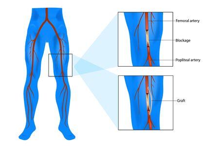 Chirurgia di bypass femorale popliteo (chiamato anche femoropopliteo o Fem-Pop). Bypass dell'innesto.