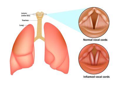 Croup (laryngo-tracheo-bronchitis). Laryngitis is inflammation of the larynx (voice box)
