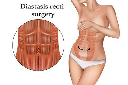 Diastasis Recti Surgery (stretching of the linea alba). Abdominoplasty 向量圖像