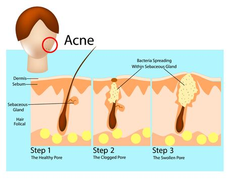 How acne develops. Acne stages. Formation of skin acne or pimple 向量圖像