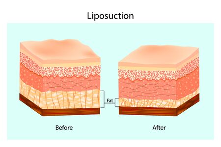 Liposuction. The Human Skin layer before lipo and after Liposuction. Vector illustration 向量圖像