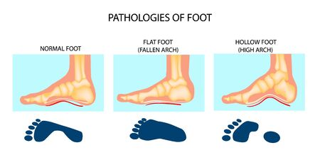 Foot pathologies. Normal, flat and hollow foot. Foot types. Skeletal views of medial side of an ankle with footprint.