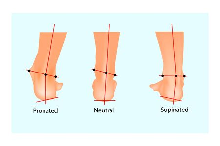 Vector illustration of the normal human foot and the foot with pronation and supination. Foot Biomechanics. Orthodic.