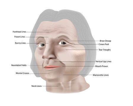 Types of facial wrinkles. Vector illustration