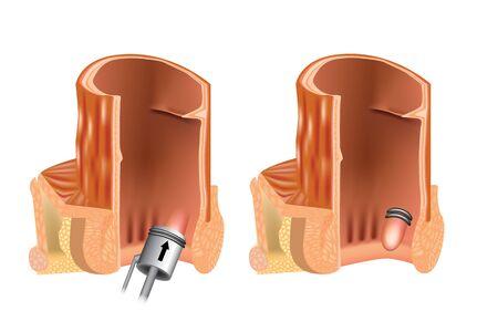 Rubber band ligation of hemorrhoid (latex ligation). RBL. Anoscope Zdjęcie Seryjne - 142771468