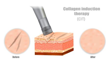 Collagen induction therapy (CIT). DERMAPEN. Microneedle stamping device.  イラスト・ベクター素材