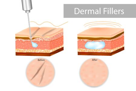 Dermal fillers, also known as