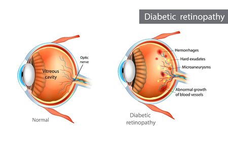 Diabetic retinopathy. Difference between Normal Retina and Diabetic Retinopathy