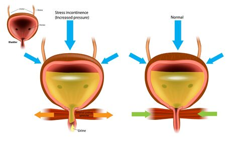 Urinary incontinence (UI), also known as involuntary urination. Enuresis Stock Illustratie