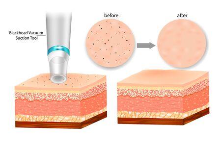 Blackhead Remover Deep Pore Vacuum Suction Facial. Blackhead vacuum suction tool Illustration