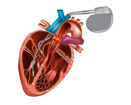 Cardiac pacemaker or artificial pacemaker.