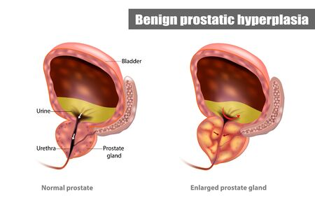 Benign prostatic hyperplasia (BPH), also called prostate enlargement