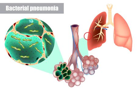 Bacteria inside alveoli of lung. Bacterial pneumonia (bacterial infection). Pneumococcal disease, which Streptococcus pneumoniae causes, is a major cause of bacterial pneumonia.